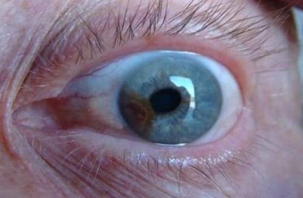 oko (2)